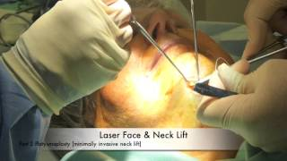 Neck lift under local anaesthesia UK Thumbnail
