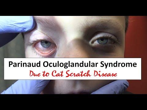 Parinaud Oculoglandular Syndrome and Cat Scratch Disease