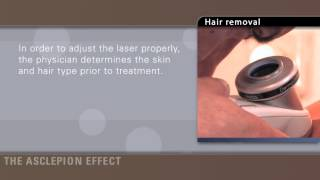 MeDioStar EFFECT - Удаление волос(, 2012-05-07T12:00:12.000Z)