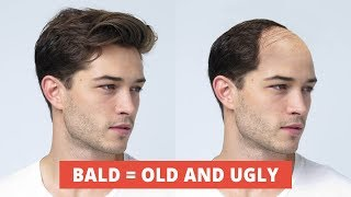 The TRUTH About A Balding Head - How To Have A Perfect Hairline