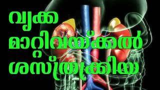 വൃക്ക മാറ്റിവെക്കൽ ശസ്ത്രക്രിയ അറിയേണ്ടതെല്ലാം |  All about kidney transplantation | Arogyavicharam