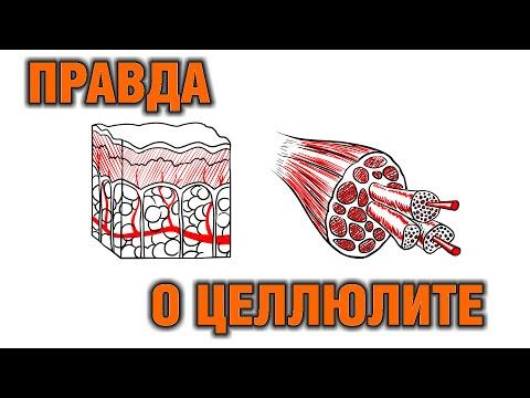 Как избавиться от целлюлита