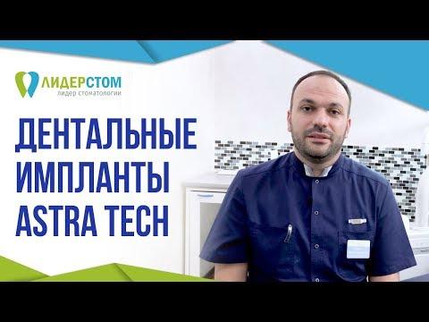 Система дентальных имплантов AstraTech 🤔 Зубной имплант Астра Теч