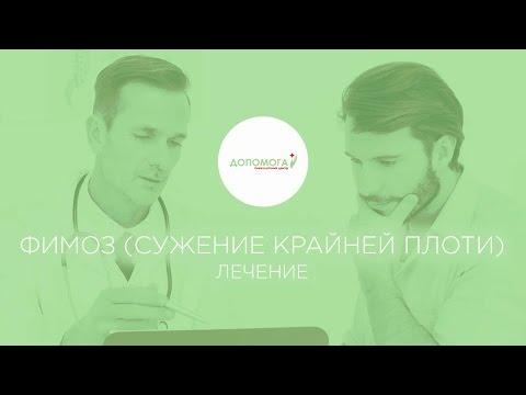 Лечение фимоза, операция циркумцизия в Киеве