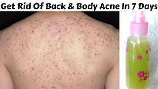 How To Get Rid Of Back And Body Acne In Just 7 Days   DIY Back and Body Acne Spray