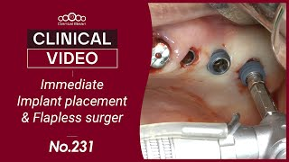 Immediate Implant placement \u0026 flapless surgery