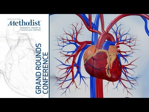 Senolytic Therapy for Cardiovascular Rejuvenation (Jordan Miller, MD, PhD) October 3, 2019