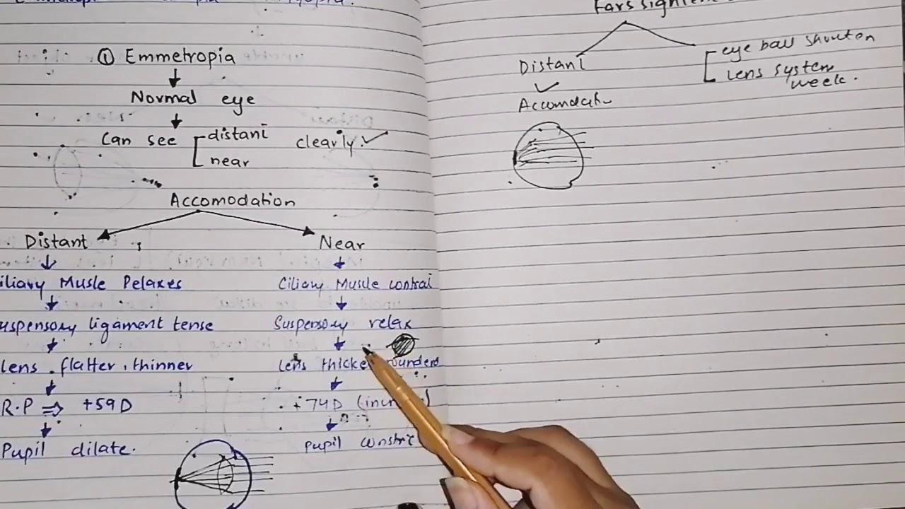 hyperopia myopia vizsga