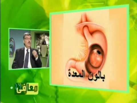 بالون المعدة/د. فؤاد الأحدب