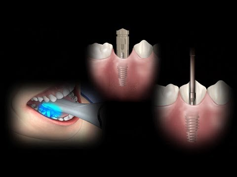Restorative Intraoral Scan Process Flow with Rosetta Scan Body using Sirona Cerec system