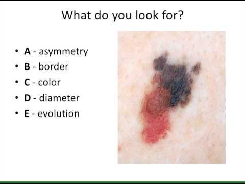 Diagnosis of Malignant Melanoma
