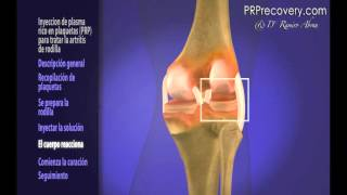 Plasma Rico en Plaquetas (PRP)  Rodilla