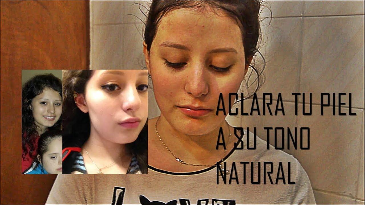 Como aclarar la piel a su tono original en una semana for Como desmanchar el marmol blanco