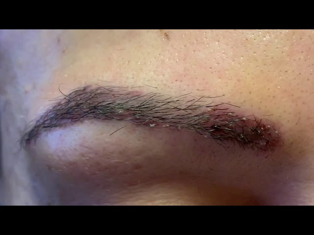 Dallas Multiracial African-Hispanic Eyebrow/Female Hairline Lowering Transplant Recovery