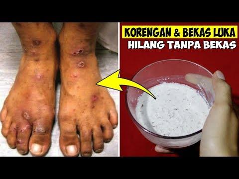 kulit-bersih-mulus-bebas-korengan,-cara-cepat-menghilangkan-bekas-luka-secara-alami-||-jihan-alia