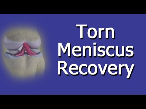 Torn Meniscus Recovery