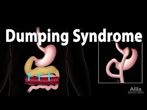 Dumping Syndrome, Animation