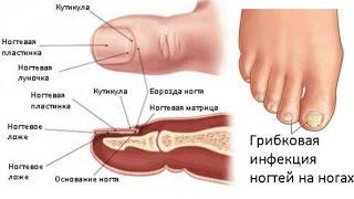 Доктор Увайдов. Грибок на ногтях. Лечение грибка ногтей