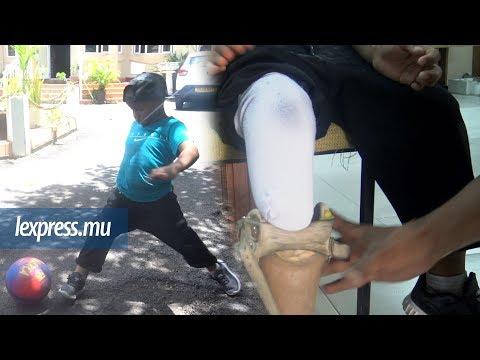 Social: le Seychellois Brandon, le plus jeune bénéficiaire du Jaipur Foot