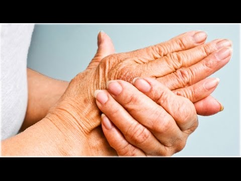 Main Causes of Arthritis from YouTube · Duration:  1 minutes 32 seconds