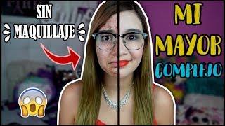 MI PIEL SIN MAQUILLAJE | LA REALIDAD DE LOS ADOLESCENTES - Lulu99