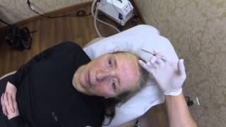 Botox Injections (Brow Lift) | Huntington, Long Island NY Plastic Surgeon