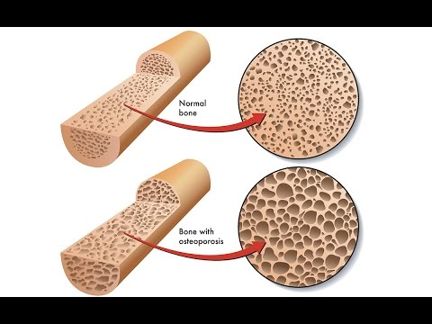 Osteoporosis - What It Is And How To Prevent Bone Loss