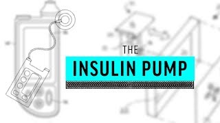Implant Files: Insulin Pump, Explained