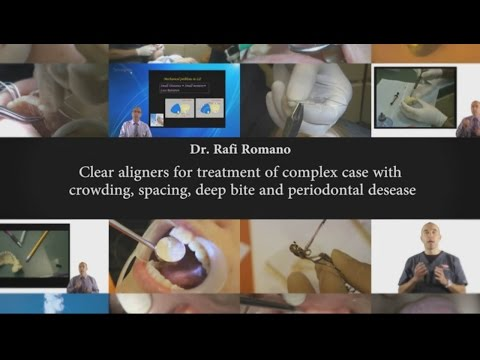 Dr. Rafi Romano - Clear aligners for treatment of complex cases