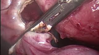 Pelvik Ağrı ve Sekonder İnfertilitede Bilateral Salpenjektomi ve Adezyolizis