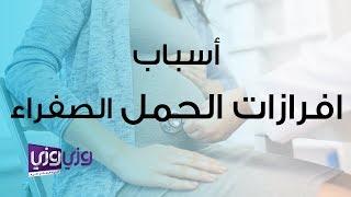الافرازات الصفراء قبل الولادة هل هي طبيعية أم مرضية
