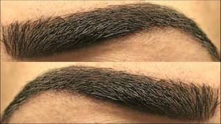 Natural Remedy Almond Oil Helps To Regrowth Eyebrow Hair And Thickens It
