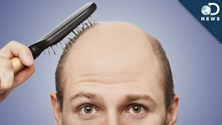 Why Do Men Go Bald?