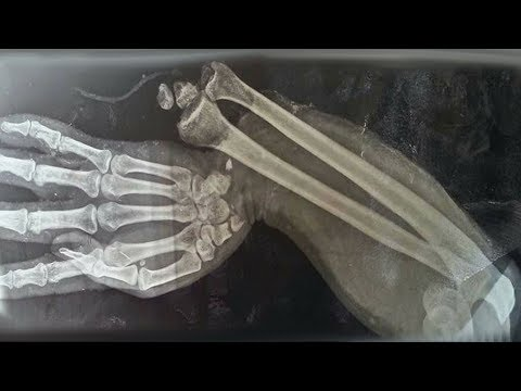 A Boy Ate 150 Gummy Vitamins For Breakfast. This Is What Happened To His Bones. from YouTube · Duration:  12 minutes 57 seconds
