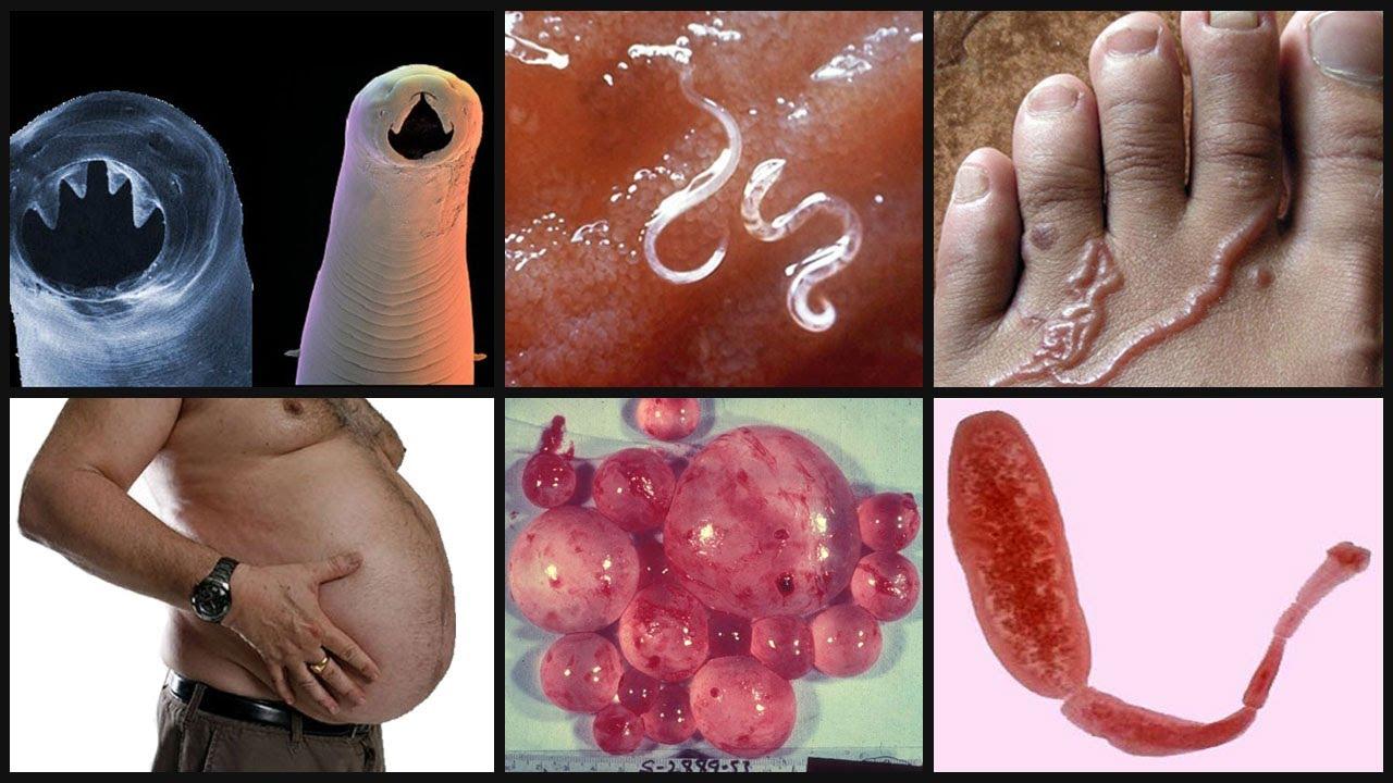 гельминты паразиты человека