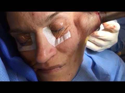 Intraoperative Distal Facial Nerve Mapping Before Synkinetic Smile Rehabilitation