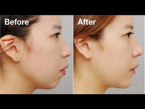 نتيجة بحث الصور عن تخلصي من سمنة الوجه بطرق طبيعية