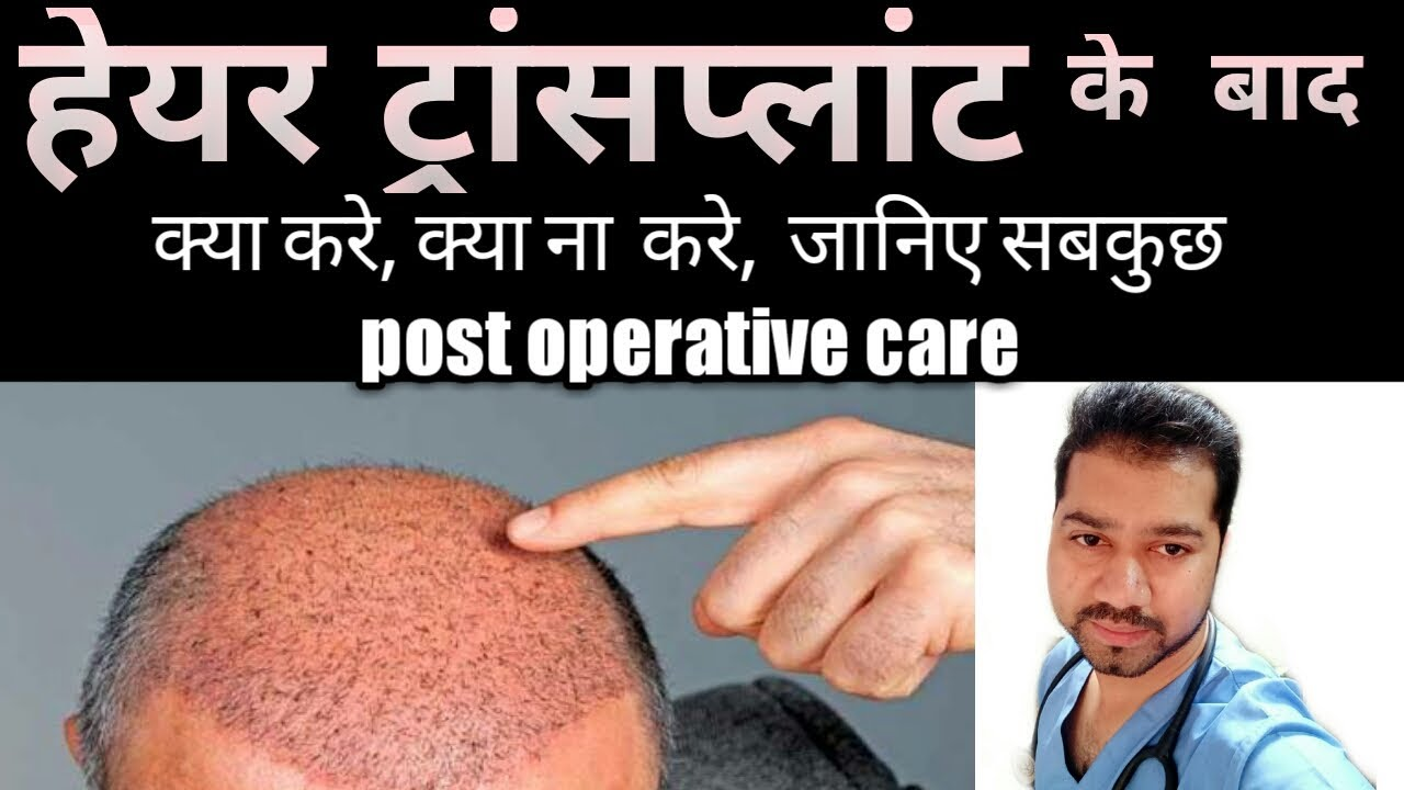 post operative care of hair transplant in hindi  Hair Transplant ke bad  care  rch 01 Cost india