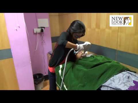 Pigmentation Treatment Bangalore | Skin Rejuvenation Treatment in India