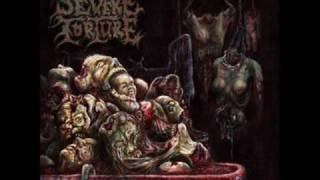 Watch Severe Torture Grave Condition video