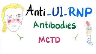 Download Anti-U1-Ribonucleoprotein (Anti-U1-RNP) autoantibodies