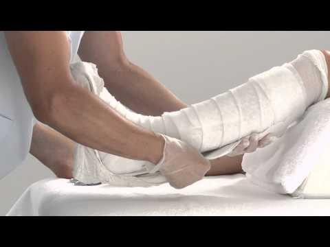 Plaster of Paris Lower Leg Splint Application
