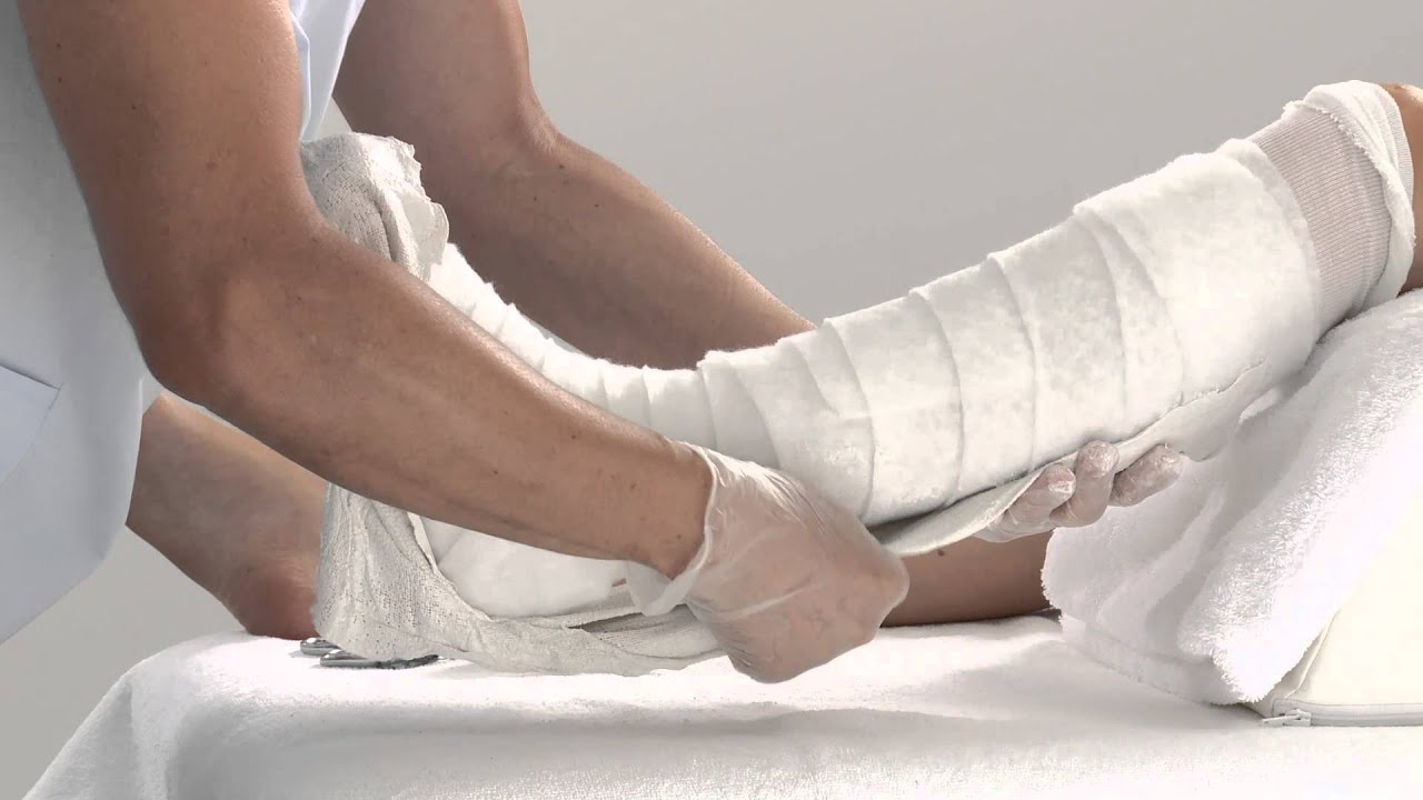 Plaster of Paris Lower Leg Splint Application