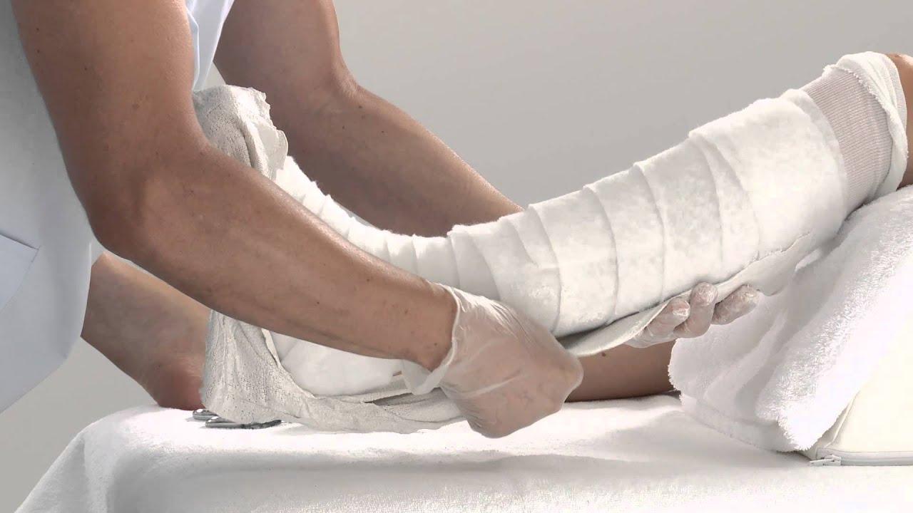 plaster of paris lower leg splint application youtube. Black Bedroom Furniture Sets. Home Design Ideas