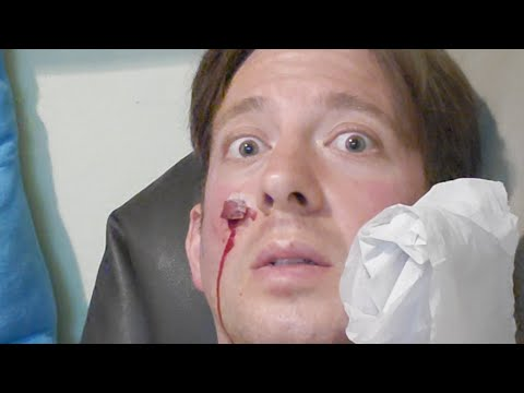 My Face Won&39;t Stop Bleeding Leech Therapy In Malaysia