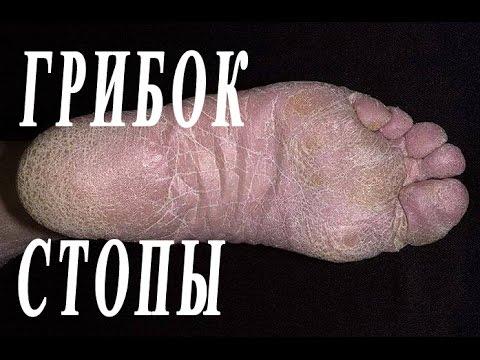 очистка обуви от грибка