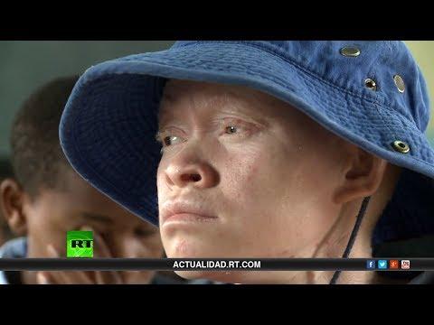 Los Blancos Negros - Documental De RT Sobre Albinos En África