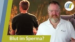Blut im Sperma - Muss ich mir Sorgen machen? | Urologie am Ring