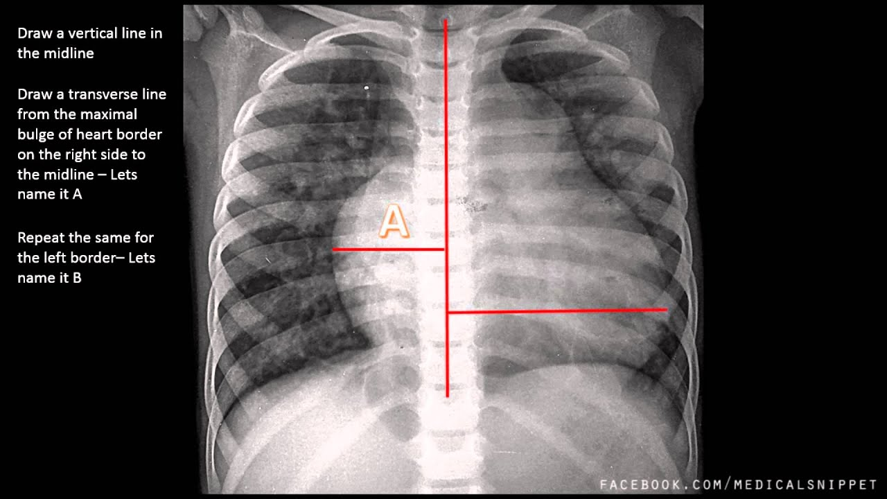 how to read chest x ray report