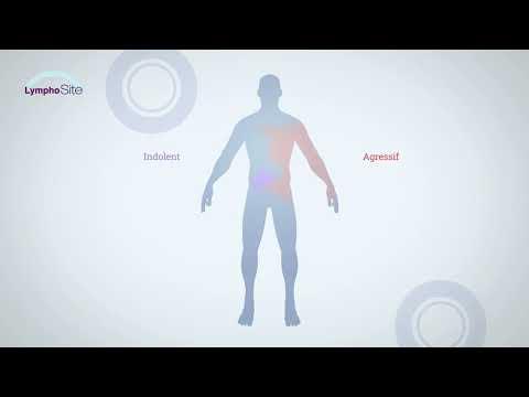 Vidéo Animation - Qu'est ce qu'un Lymphome ?